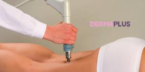Лечение на целулит в Дерматологична Клиника в Пловдив