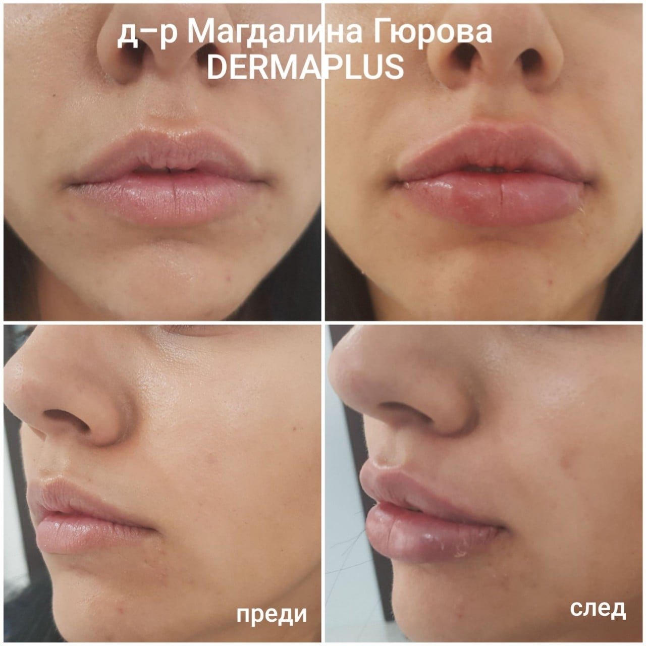 Уголемяване и възстановяване на устни Преди След