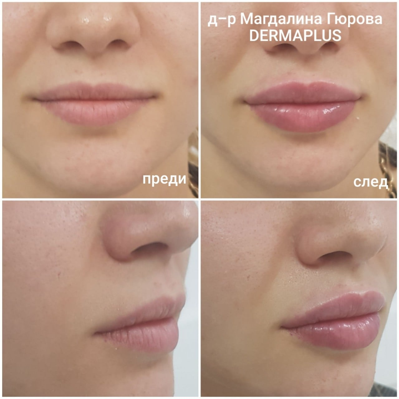 Уголемяване на устни в Пловдив