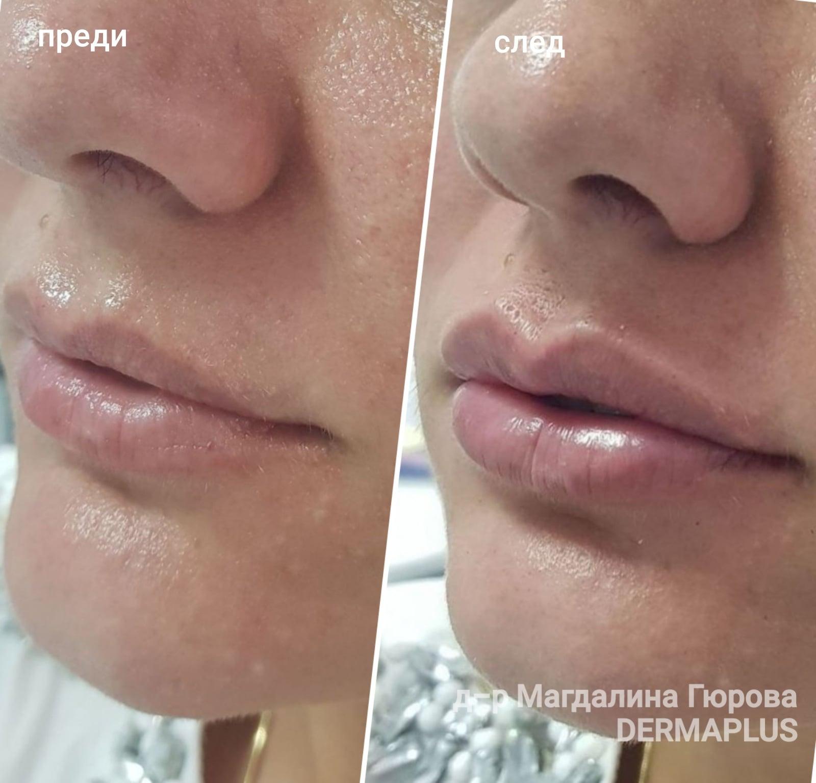 Уголемяване на устни с безиглена терапия