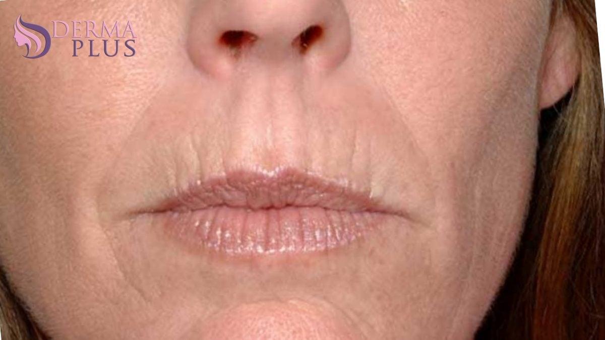 perioral-wrinkels1-1200x675.jpg
