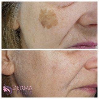 Слънчеви петна (Соларно лентиго) на лицето
